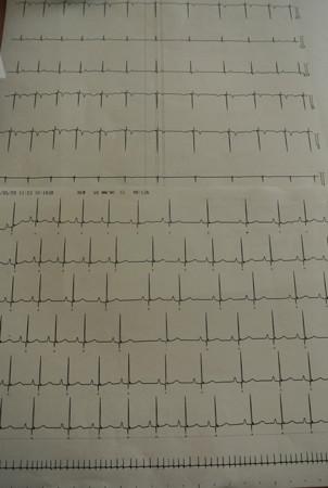 心電図の結果